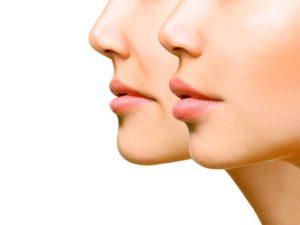 imagen de relleno para labios